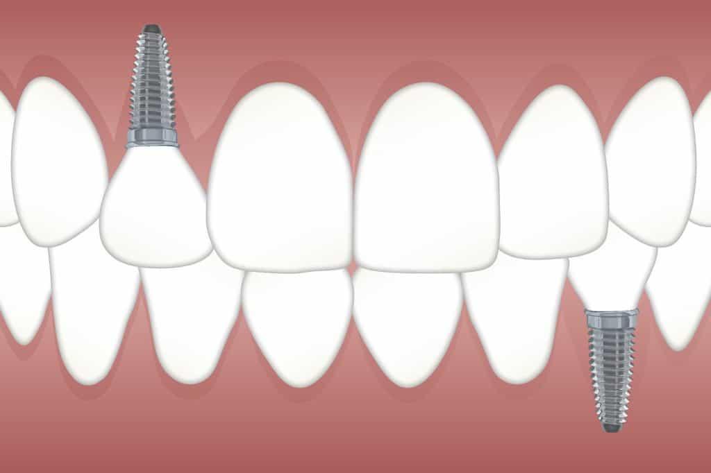 שיניים עם ברגים
